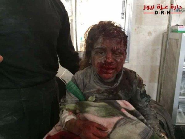 Ruski avioni bombardovali školu: Ubijeno osmero djece i učitelj