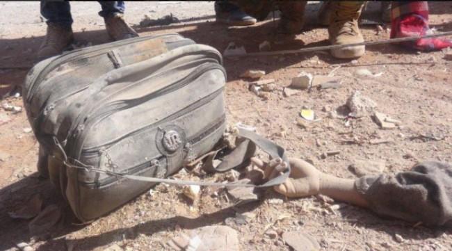 Najpotresnija slika dana: Odbijena ruka ubijene sirijske djevočice drži đačku torbu